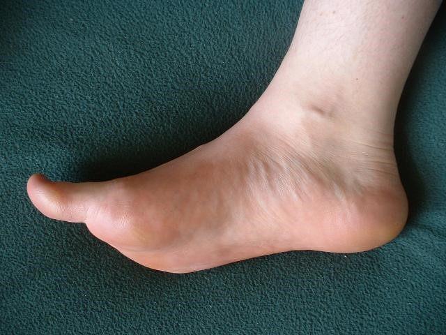 Crampi alle dita dei piedi